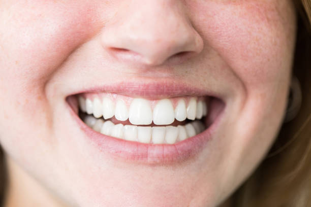Close-up of young woman face with beautiful white teeth after dental treatment. Female with beautiful toothy smile.
